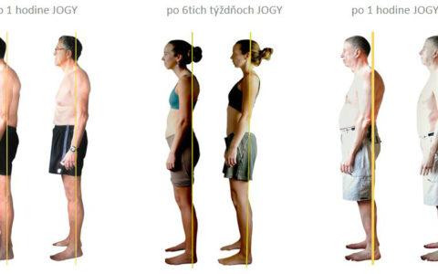Ako Ti joga dokáže zachrániť chrbticu? – časť 1. Motivácia
